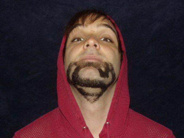 napi szakáll